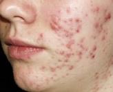 acne puistjes laseren